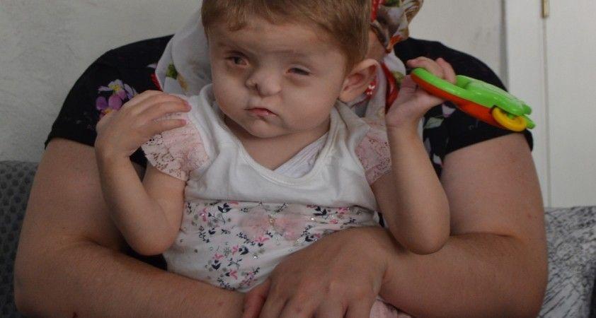 3 yaşındaki kızının gözü, kulağı, nefesi oldu