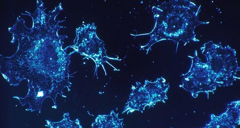 Türk doktor kansere karşı ilaç geliştirdi: 'Doğrudan tümöre ulaşıp yok ediyor, sadece ultrason ve iğneye ihtiyaç var'