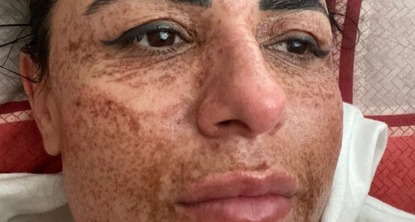 Güzelleşmek isterken yüzünde yanıklar oluştu